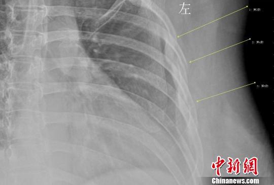 女白领咳断3根肋骨 不良生活习惯致骨质疏松