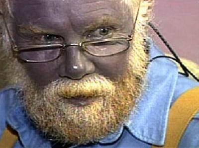 蓝肤症-蓝皮肤症-全球十大最怪异疾病 树人 VS 异已手图片