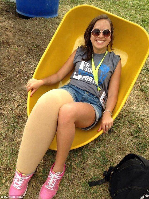 19岁罹患罕见疾病的少女PO比基尼照挑战你的